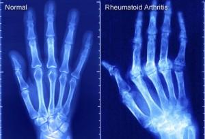 PRinc_rm_x-ray_of_rheumatoid_arthritis